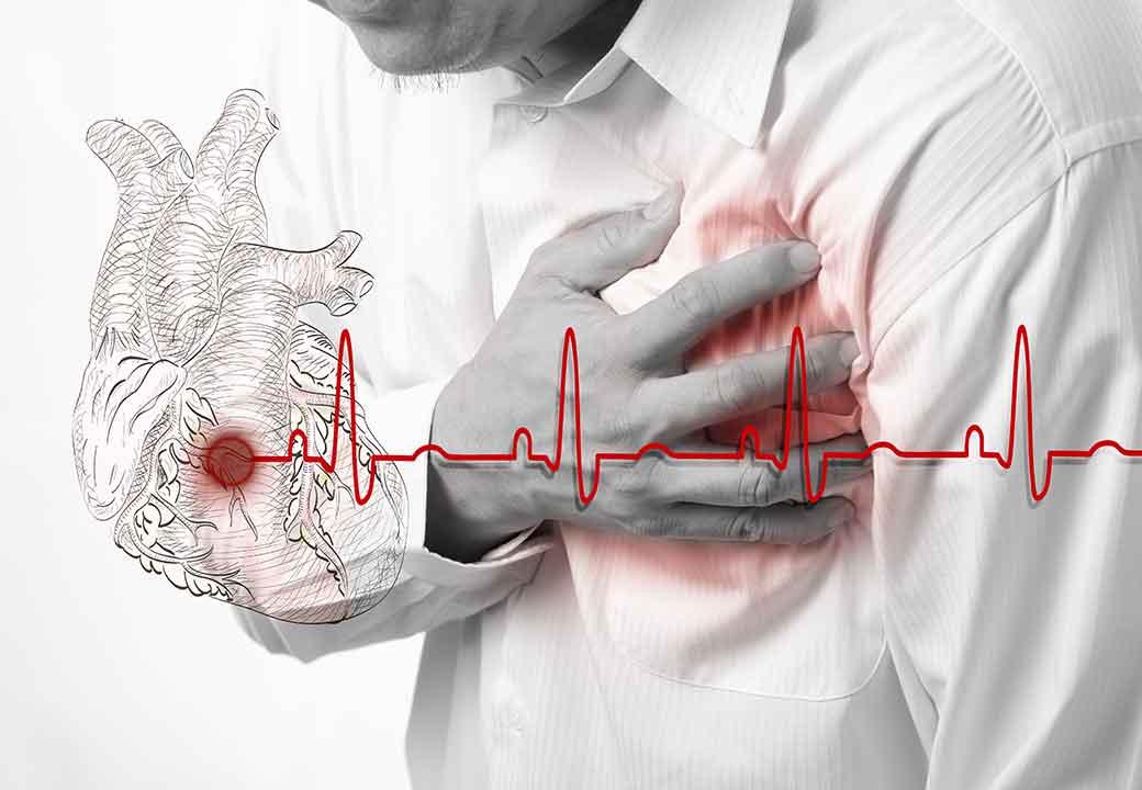 Возможная первопричина – ишемическая болезнь сердца