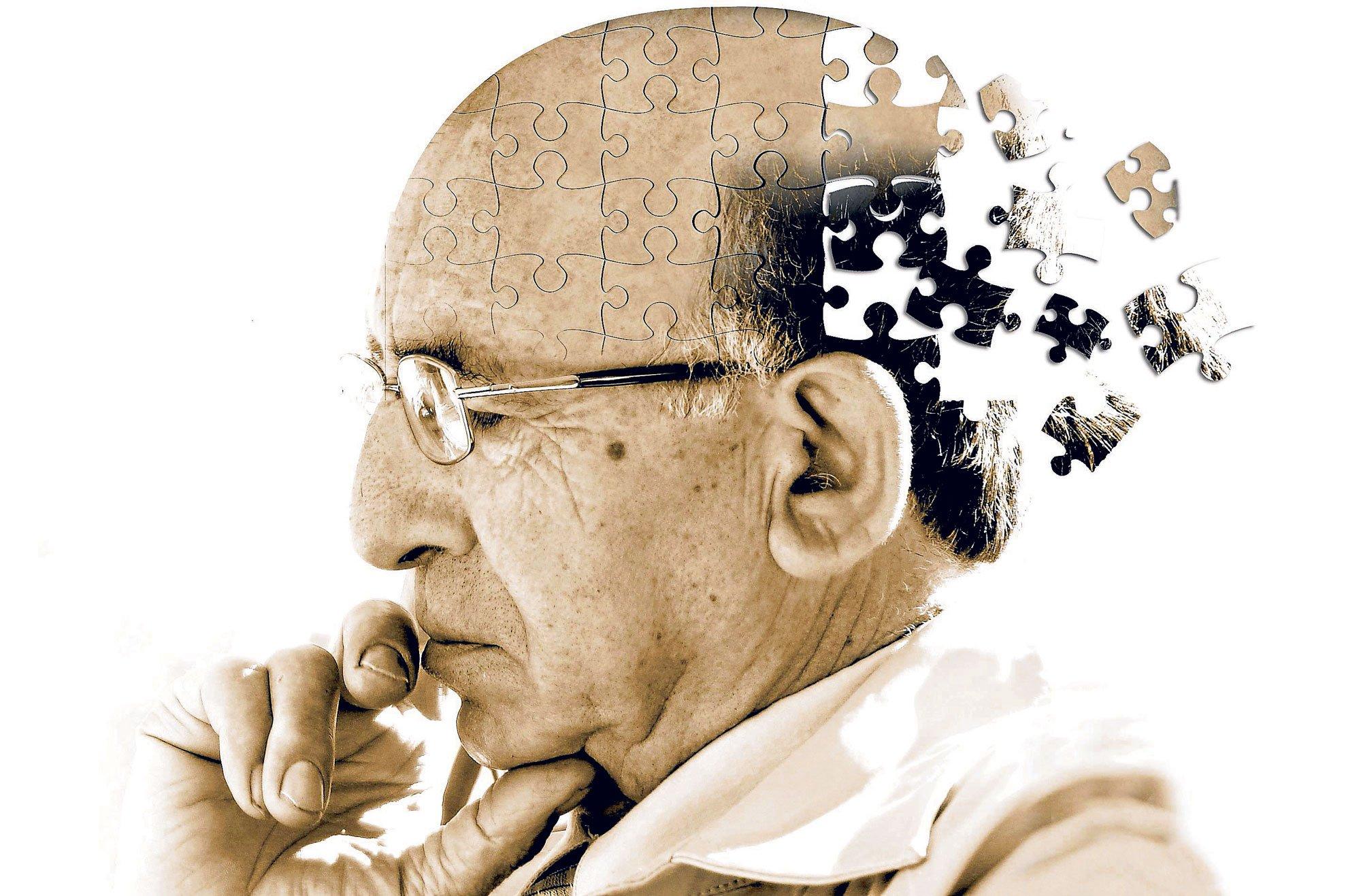 Деменция возникает у пожилых людей, но и более молодые личности от нее не защищены